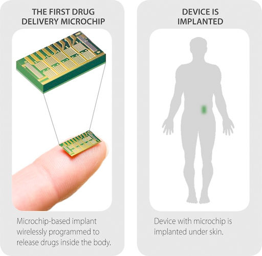 Wireless-Drug-Delivery-Chip-02